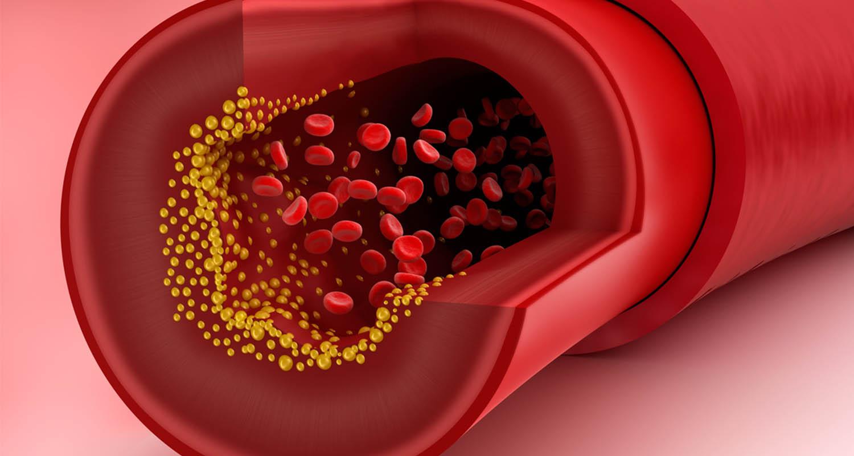 أسباب غريبة ونمارسها كل يوم تسبب ارتفاع الكوليسترول وأمراض القلب الخطيرة .. لن تتوقعها
